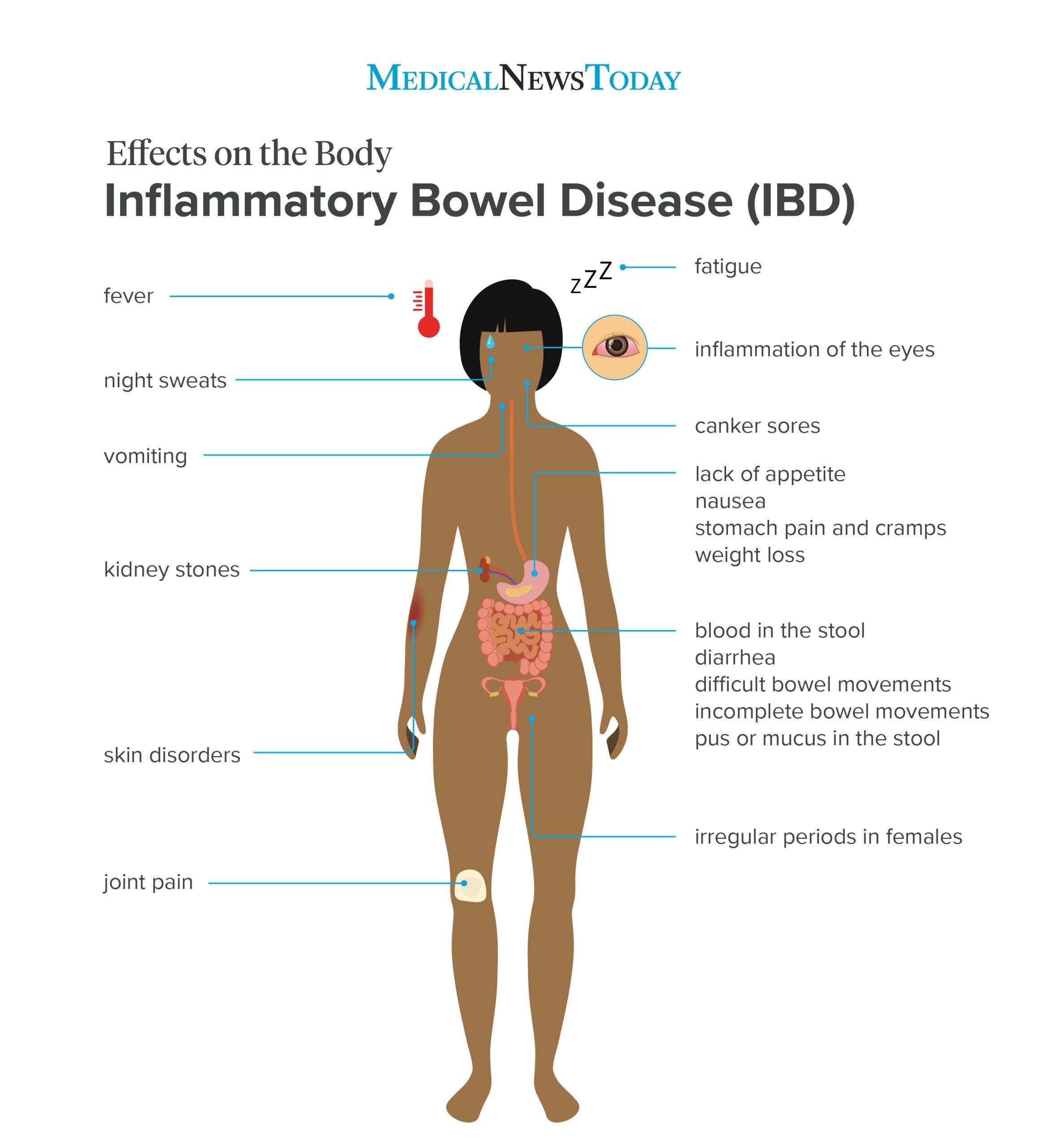 Inflammatory Bowel Disease Causes Symptoms And Treatments