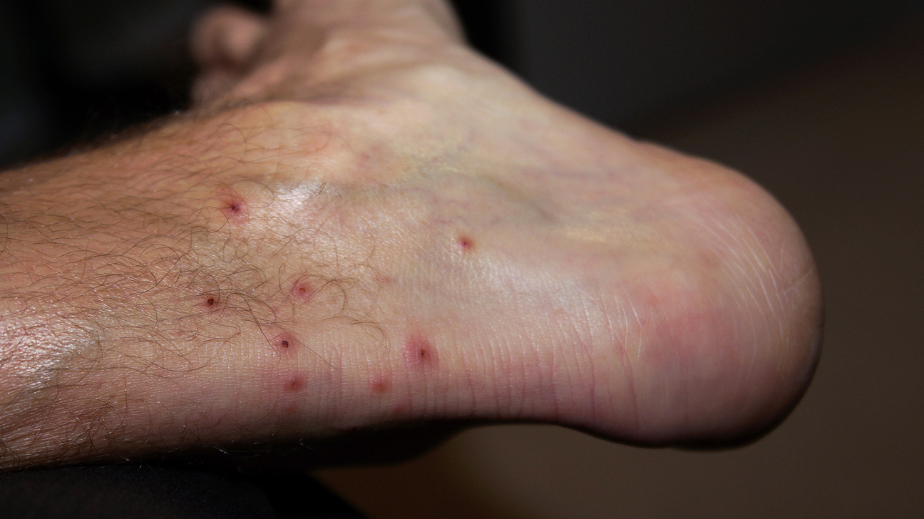Mite Bites Symptoms Treatment And