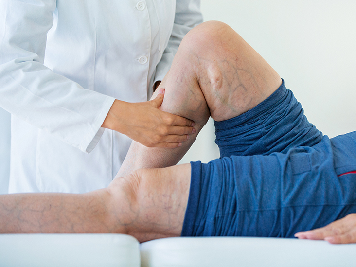Deep vein thrombosis: Definition, symptoms, and treatment