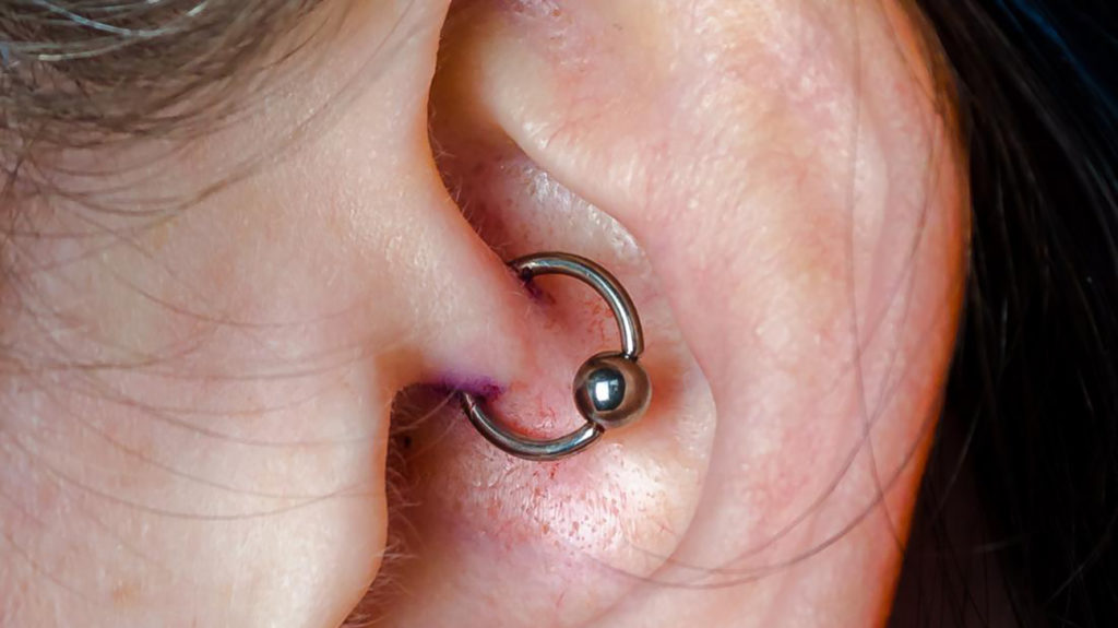 Daith Piercings For Migraines Do They Help And Alternative Treatments