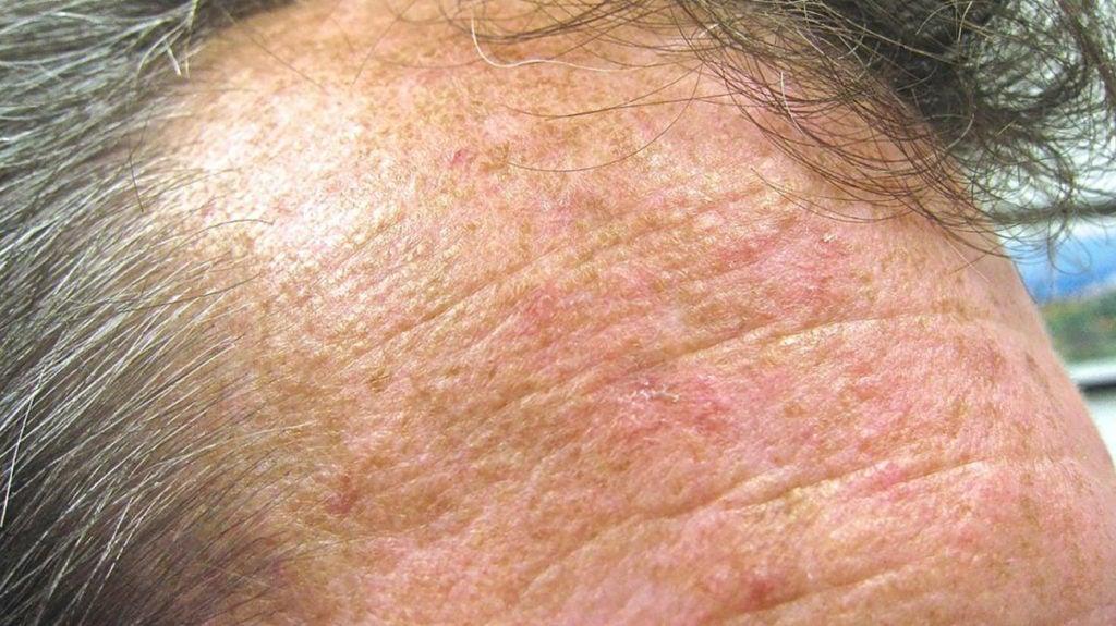 actinic skin damage