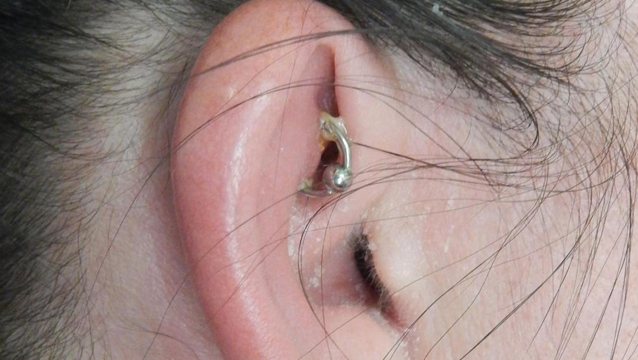 Infected Ear Piercing Symptoms Treatment And Prevention