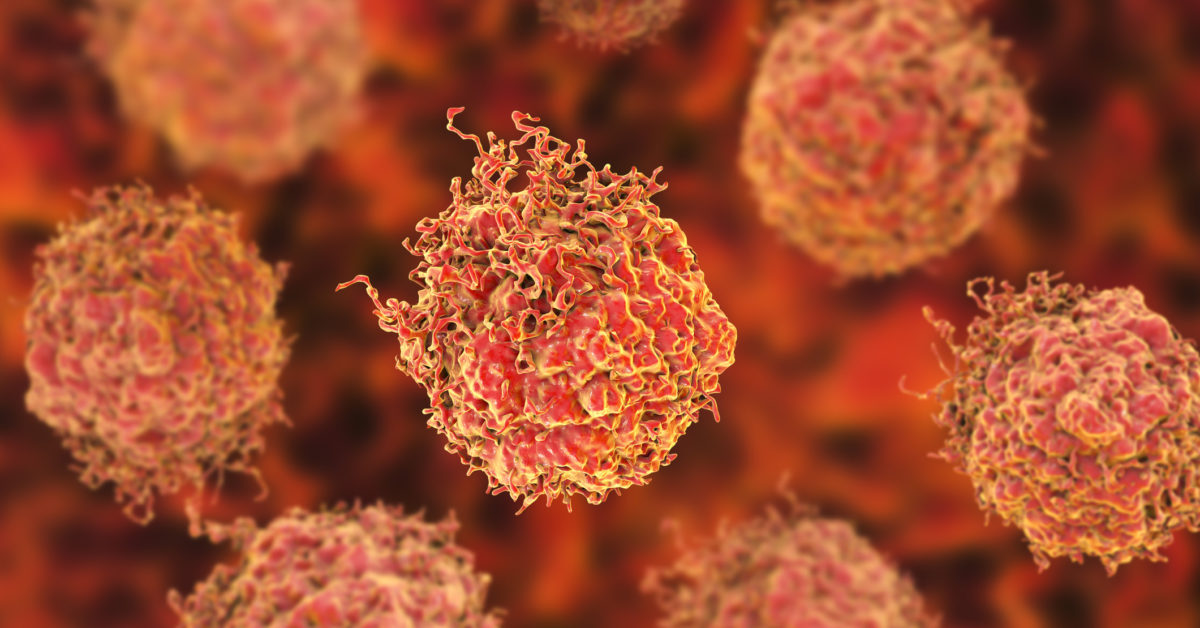 Tumor cell type identified that makes prostate cancer more aggressive