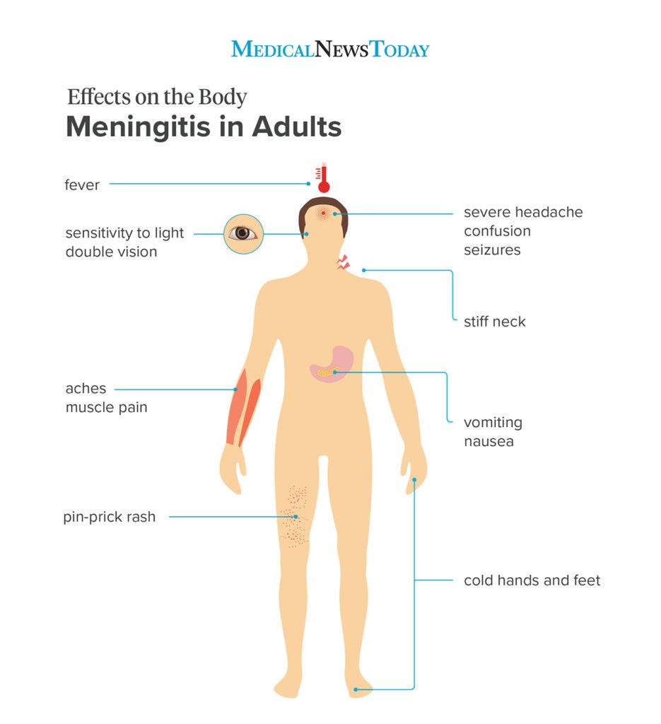 Meningitis rash: Pictures, symptoms, and similar rashes