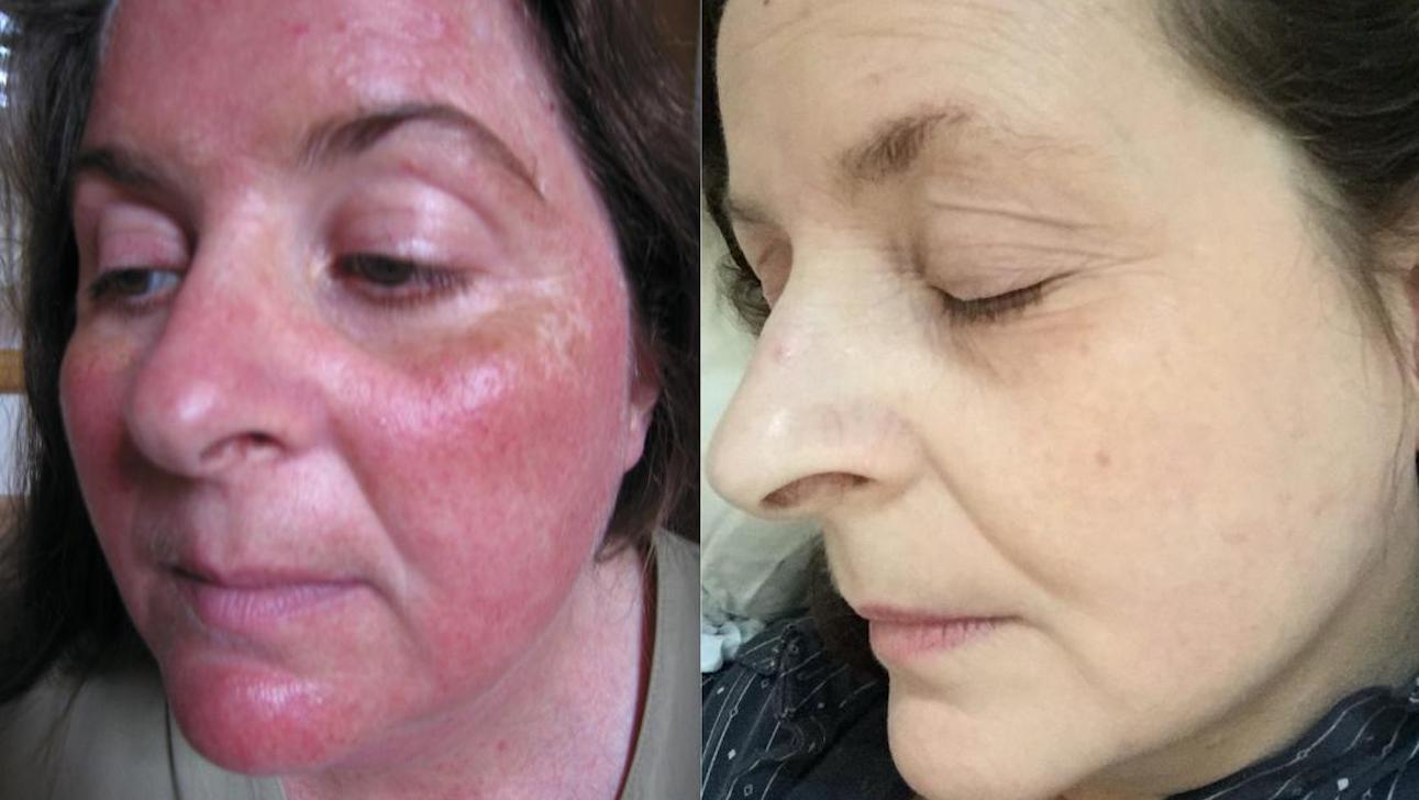 Rosacea Treatment Types Causes And Symptoms