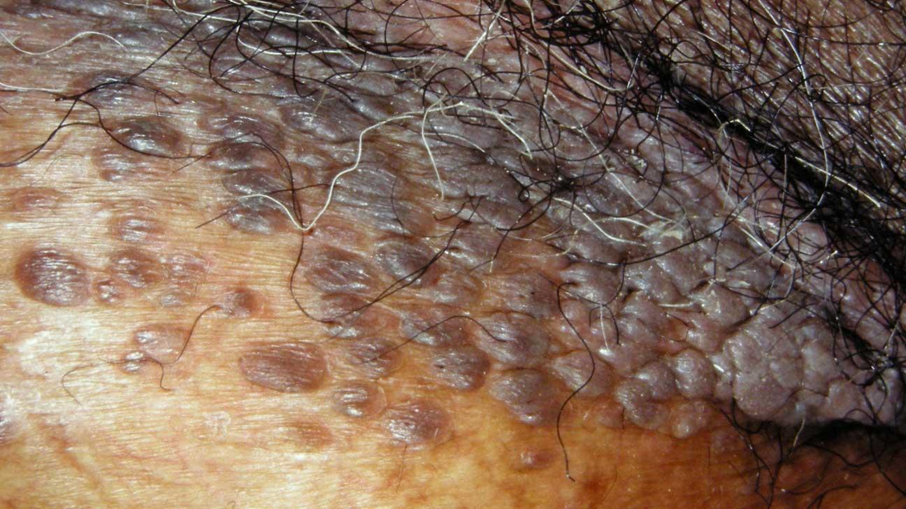 wart on scrotum skin