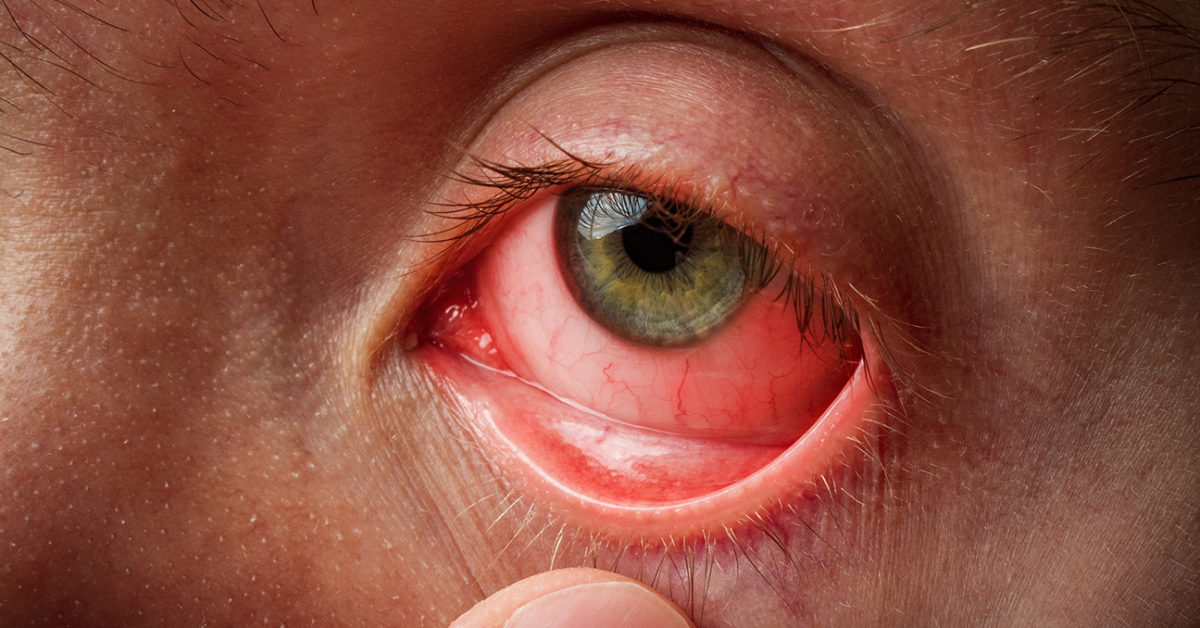 Infected eye: Types, causes, and treatment
