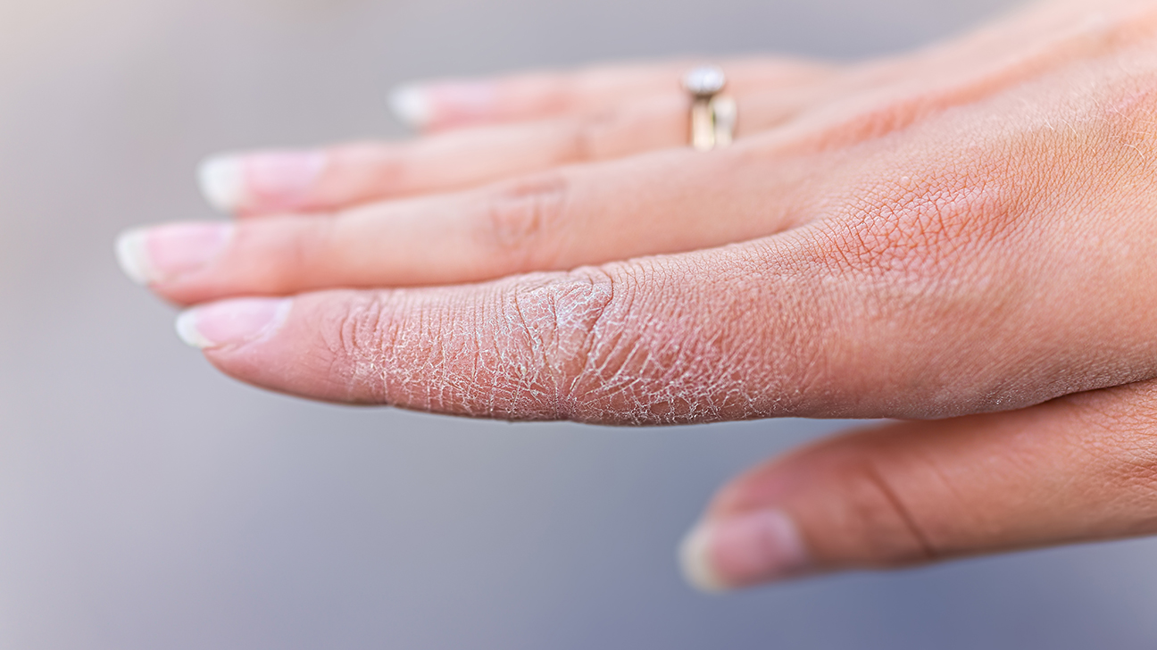 Cracked skin on hands and feet: Causes