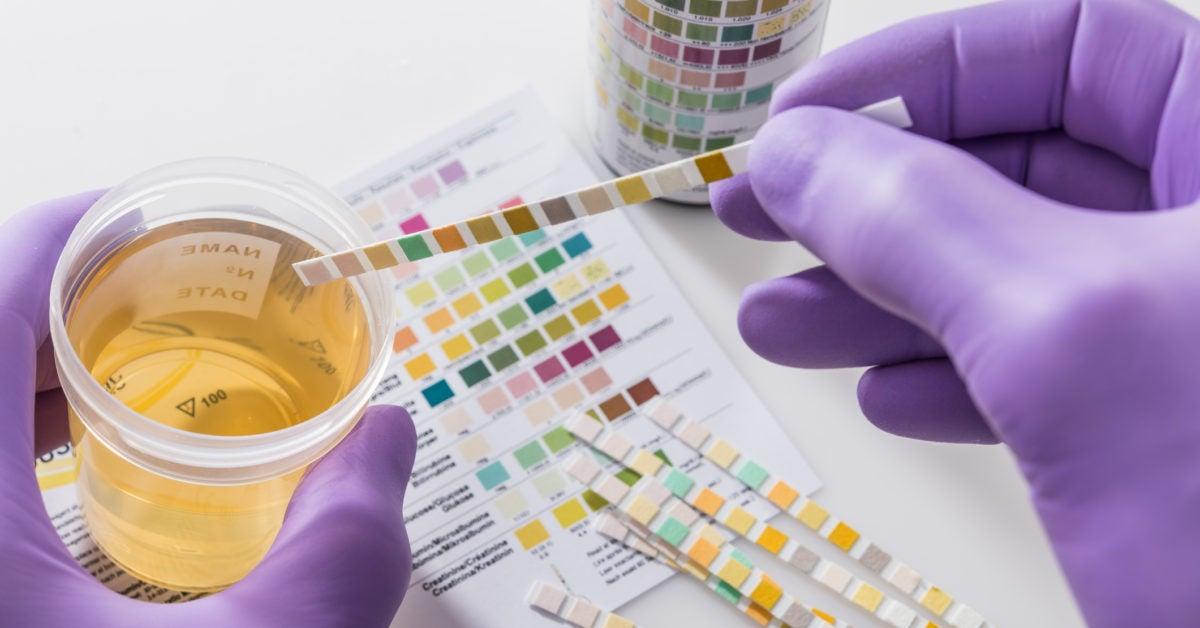 Noninvasive urine test moves a step closer