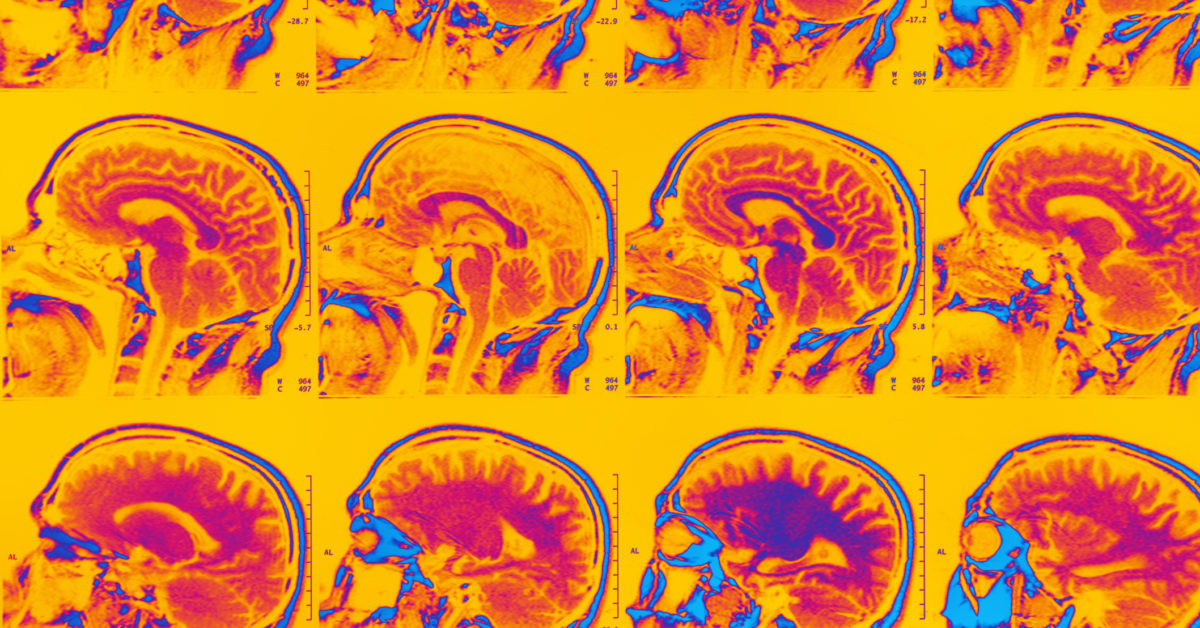 Targeting early brain inflammation may slow down Alzheimer's