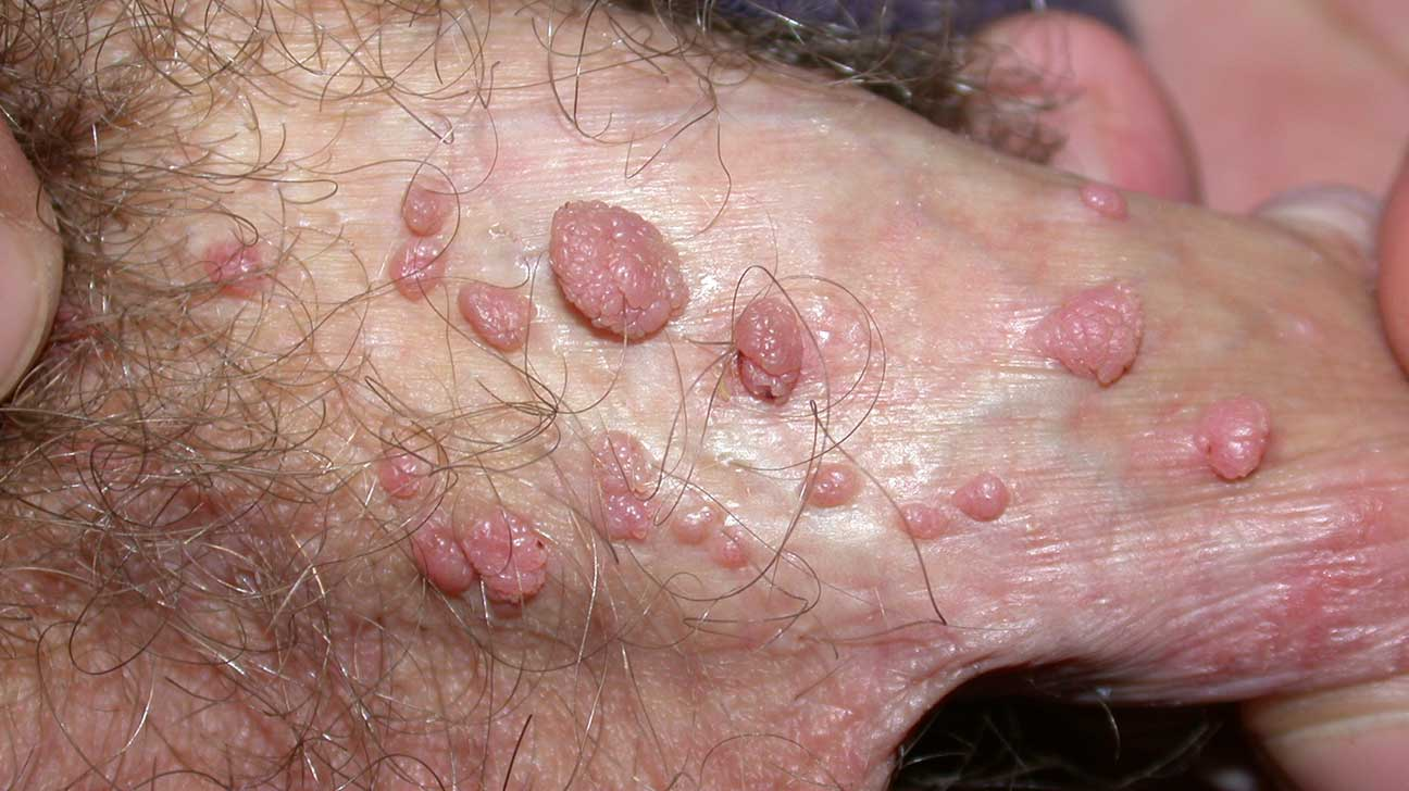 hpv warts come and go)
