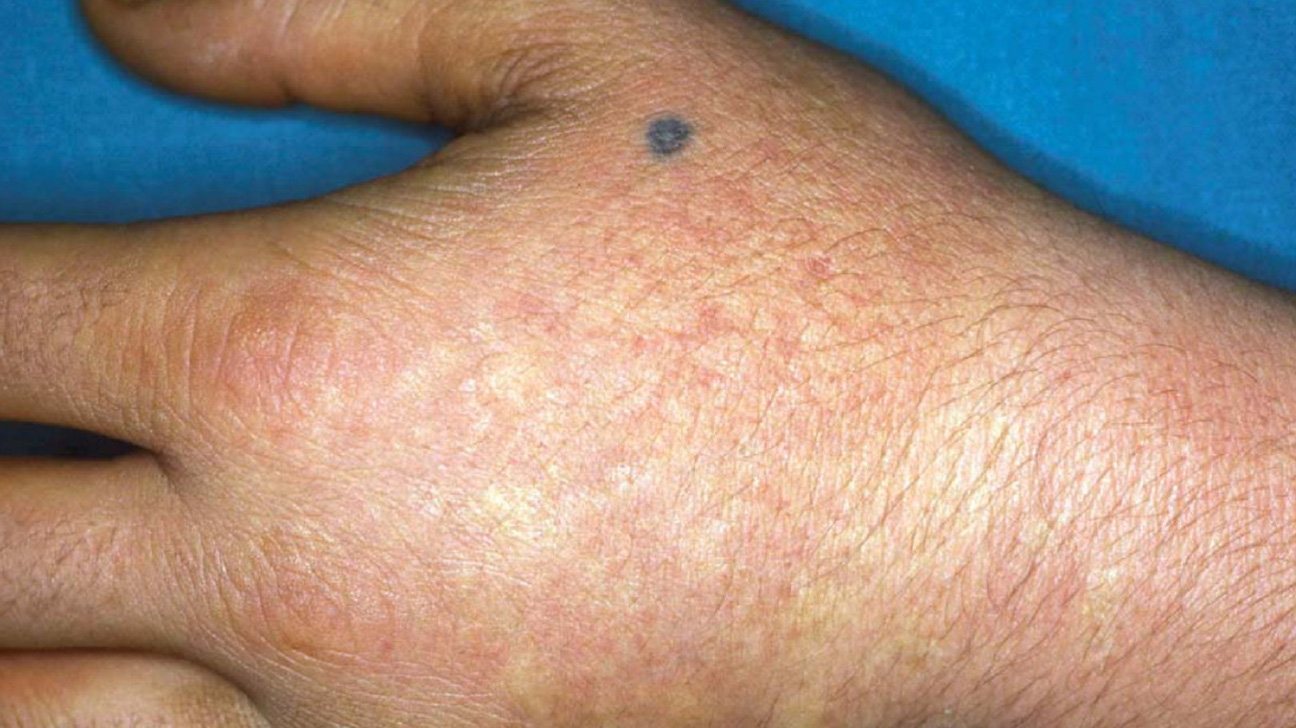 Erythropoietic protoporphyria: Definition, causes, symptoms, and more