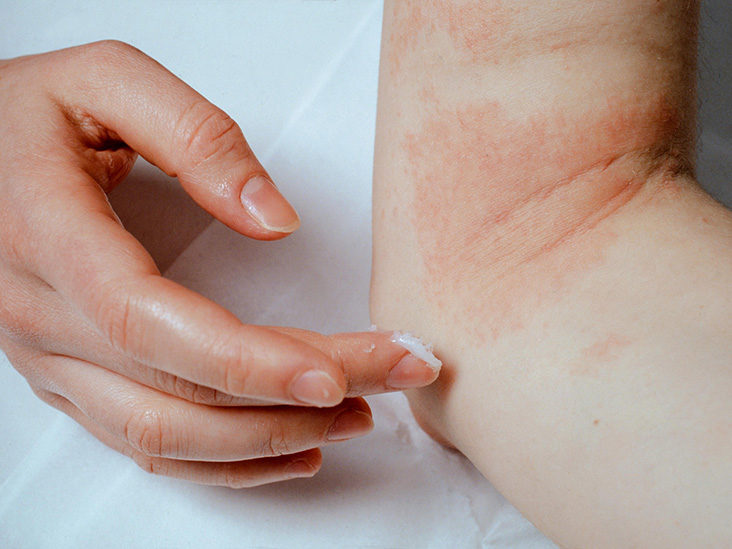 eczema meaning in malayalam