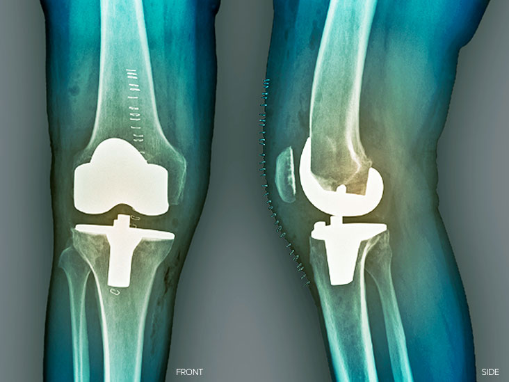 Knee replacement pain: Management and when to see a doctor