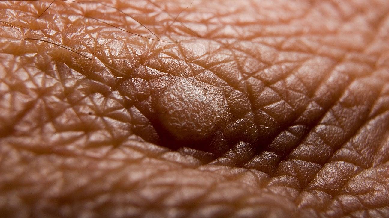 warts on dark skin)