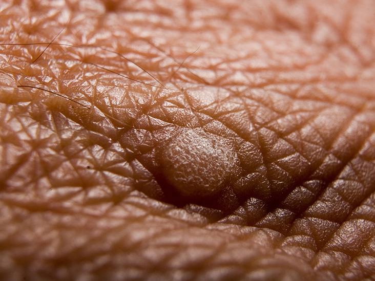 wart on scrotum skin)