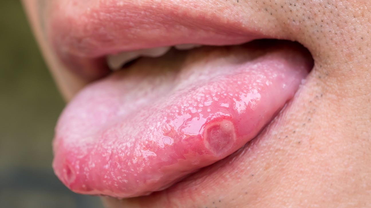 Bubble on of white tongue tip White Spots