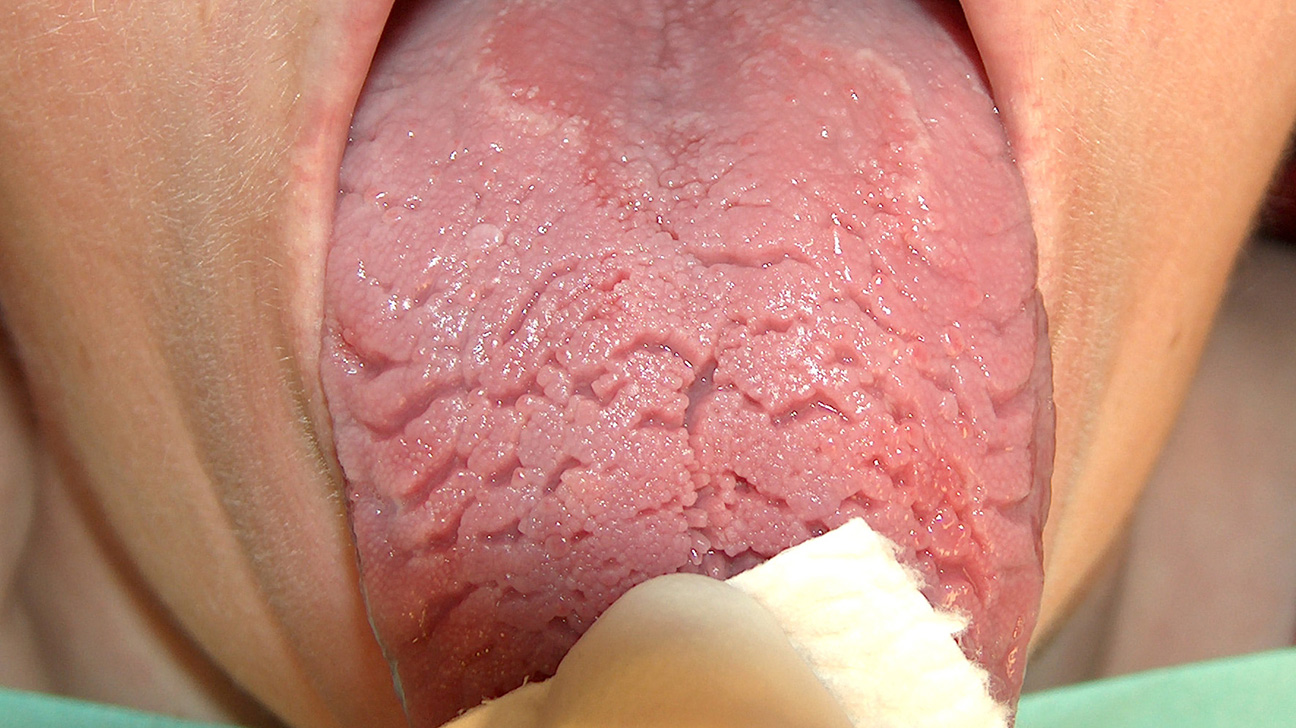 Split in middle of tongue