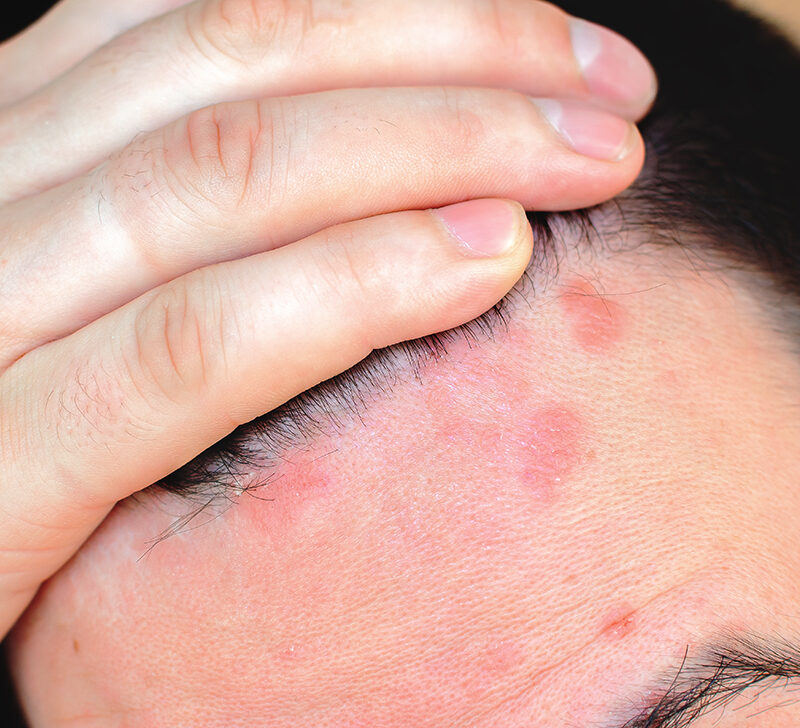 Red spots on scalp: Pictures, causes, and treatments