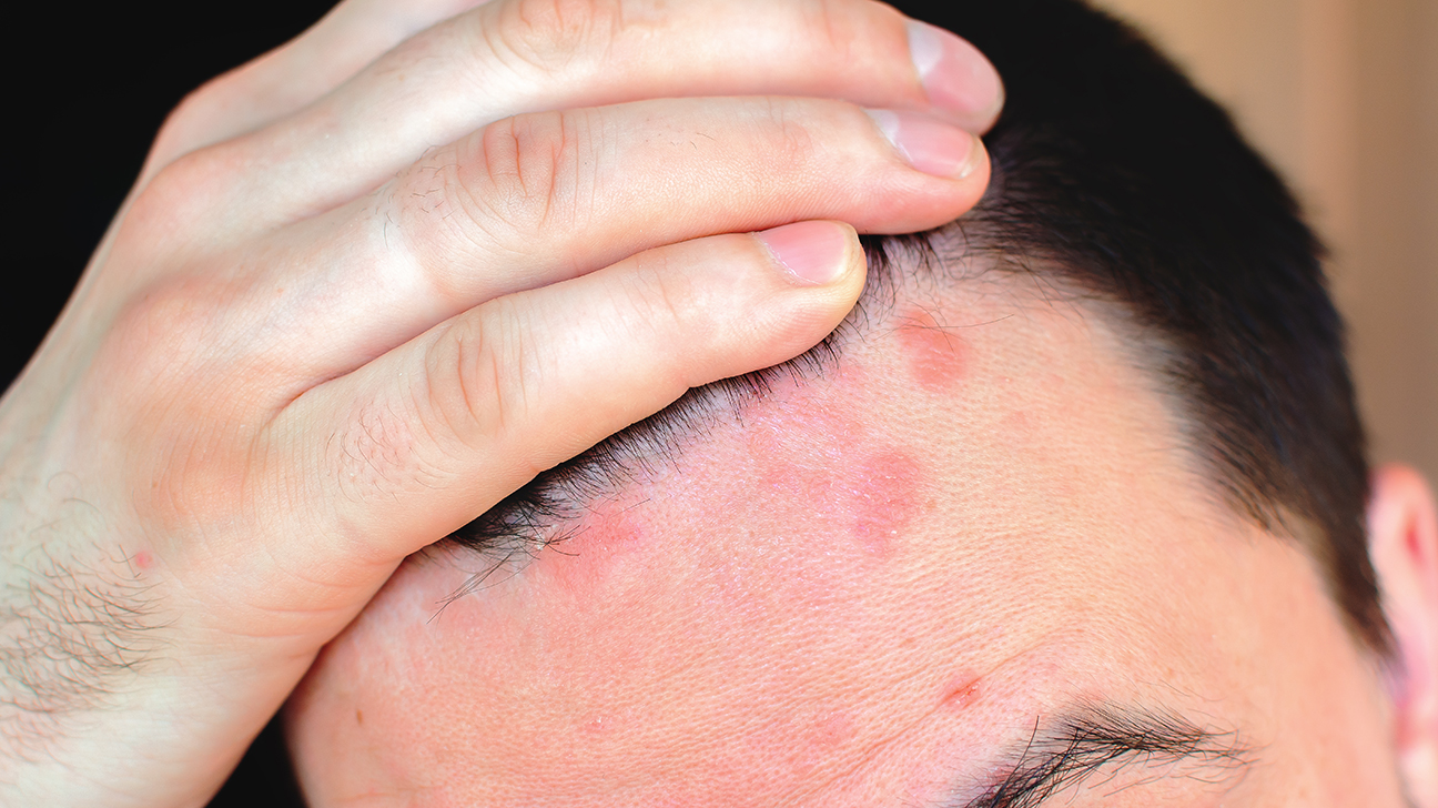 Dermatitisz opisthorchiasis után