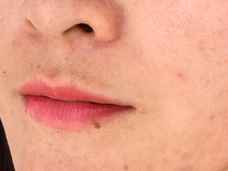 Spot On Lip Causes Symptoms And Treatment