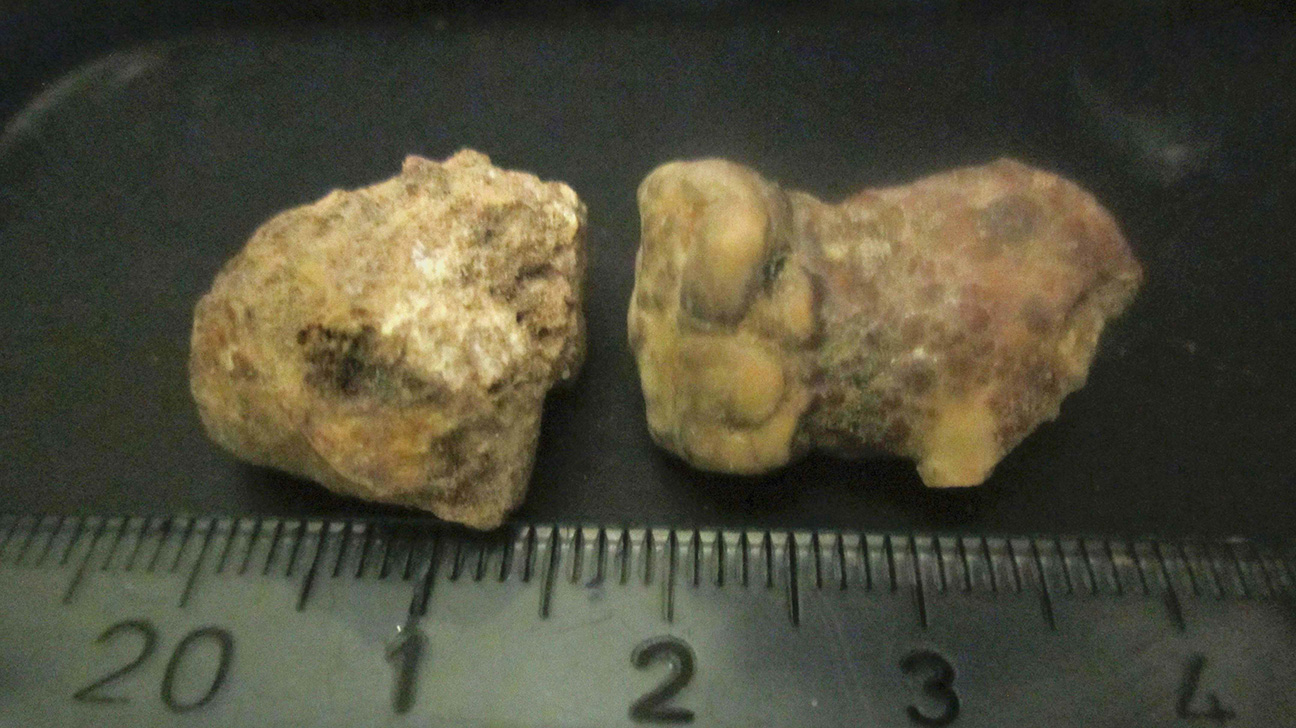 Kidney Stones Pictures Visuals Symptoms And Treatment