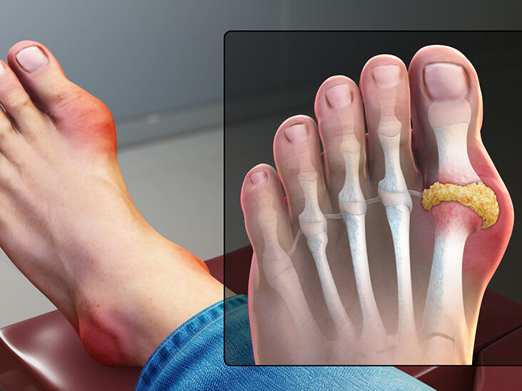 Gout in big toe: How to identify, causes, and treatment