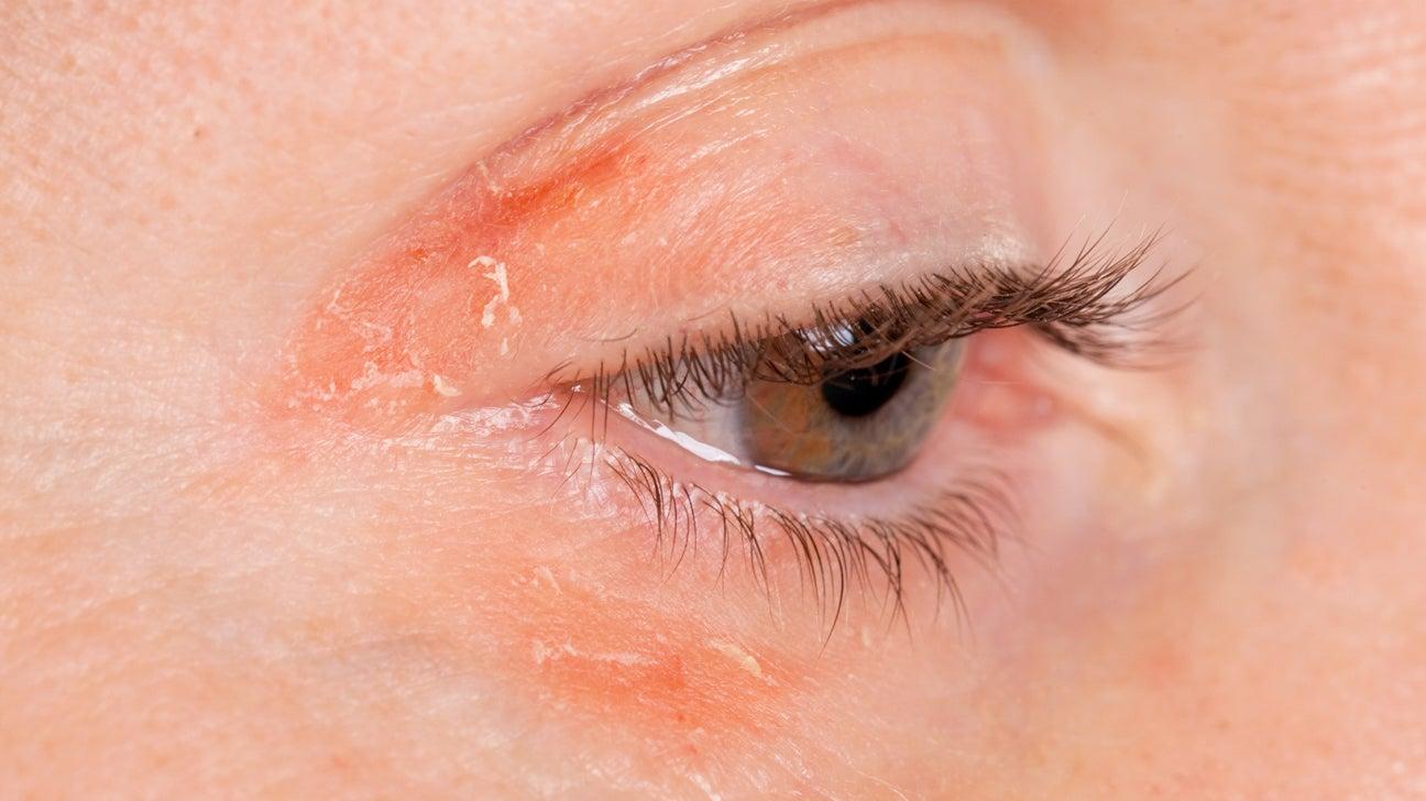 Red Rings Around Eyes: Lids, Sockets, Toddler, Symptoms ...