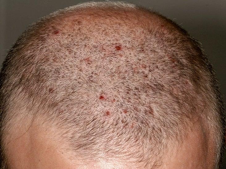 psoriasis scalp causes nhs