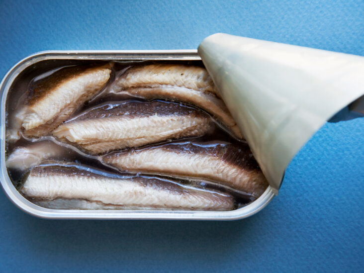 Are sardines good for you? Nutritional benefits and more