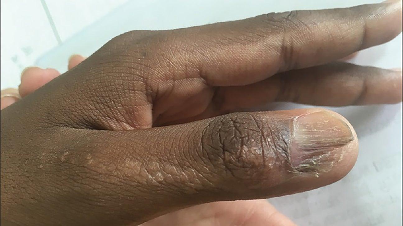 Penis vitiligo Michael Jackson's