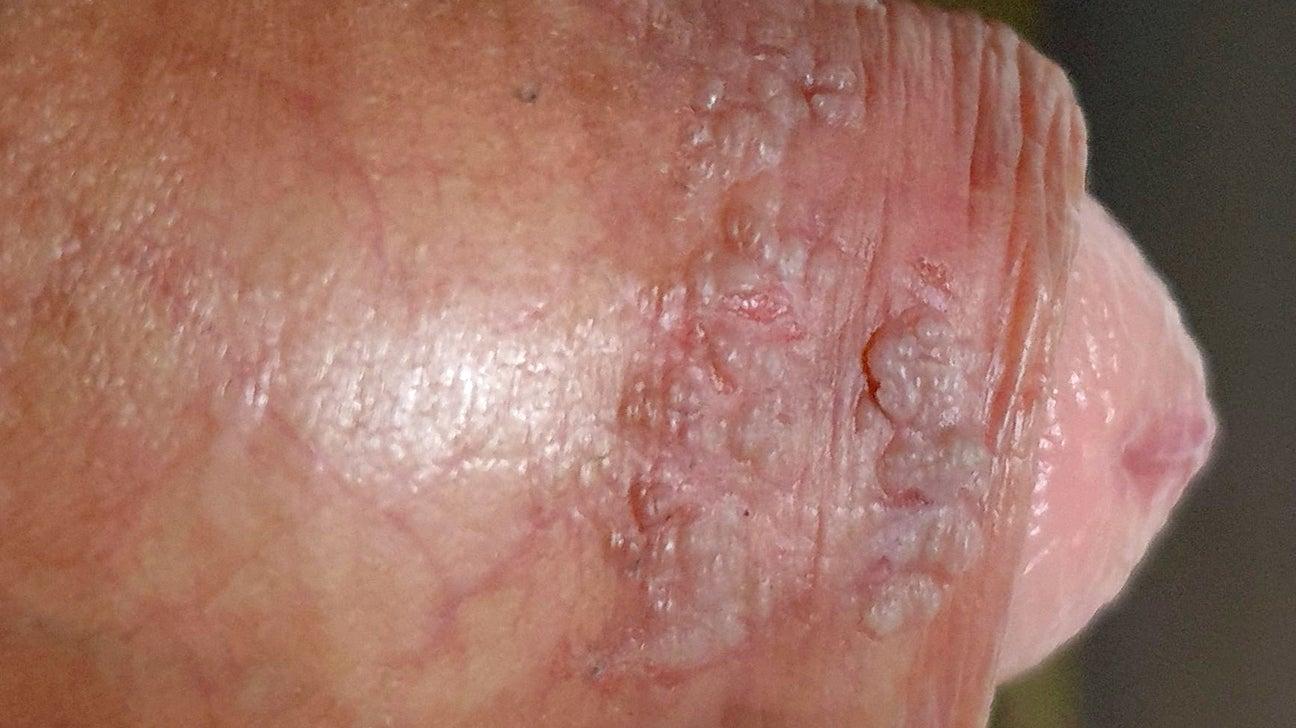 papillomavirus with warts
