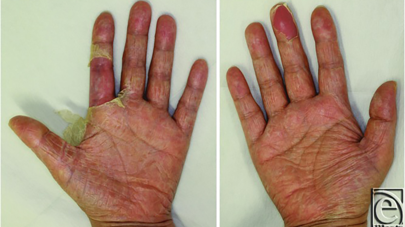 toxic shock syndrome rash on hands)