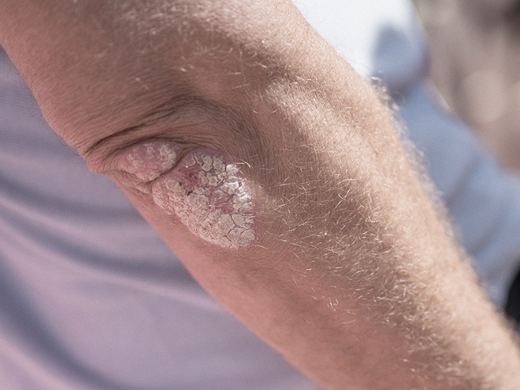 Psoriasis and the immune system: Five facts to know