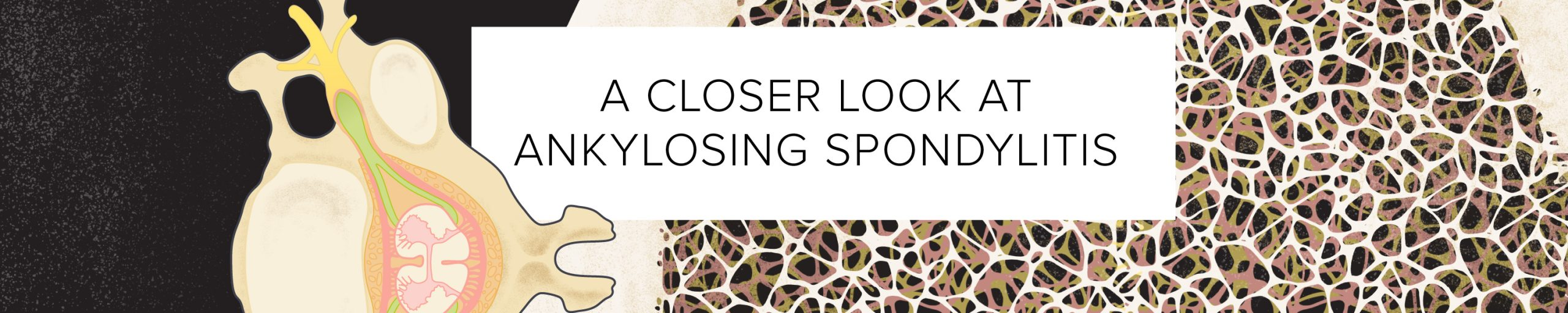 A Closer Look at Ankylosing Spondylitis