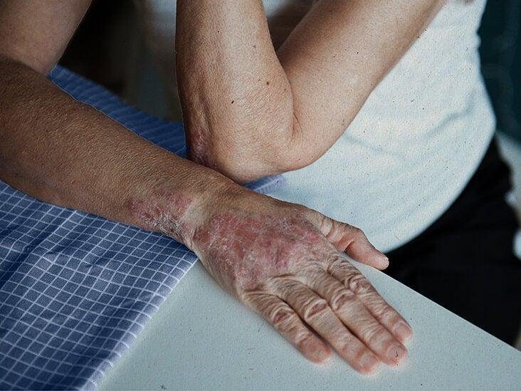 plaque psoriasis hands pictures