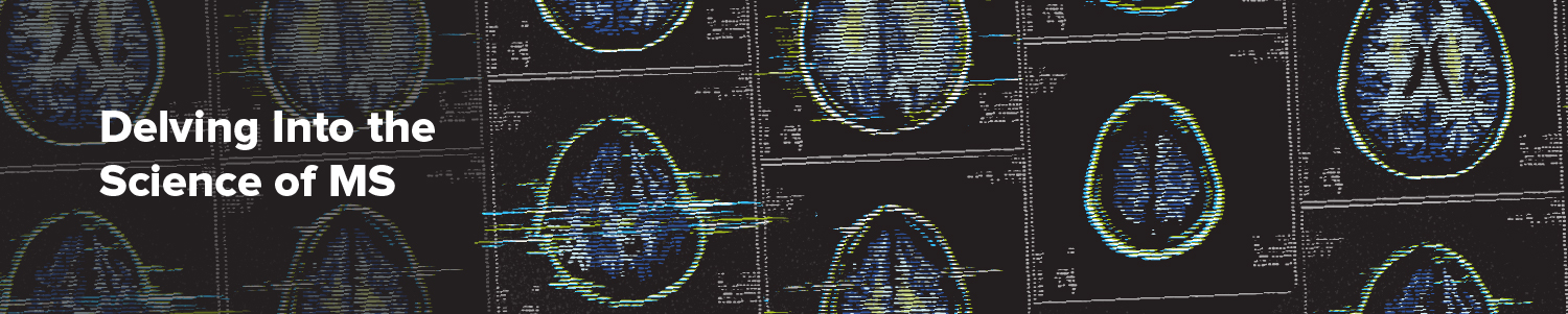 Delving Into the Science of Multiple Sclerosis