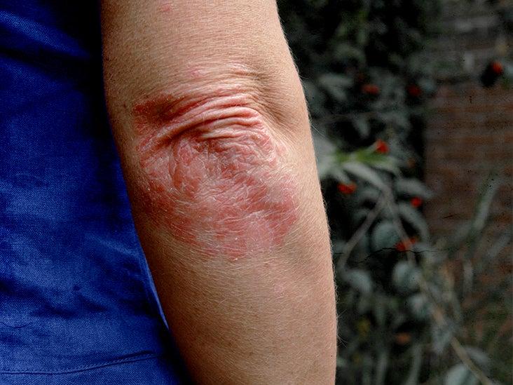urea for psoriasis treatment