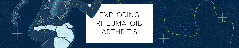 Exploring Rheumatoid Arthritis