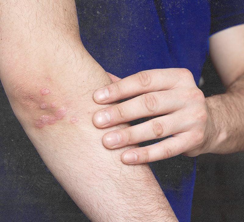 Balea MED Testápoló tej 2in1, 15% ureával, extrém száraz, érzékeny és érdes bőrre, ml | regisegfelvasarlas-rakoczi.hu