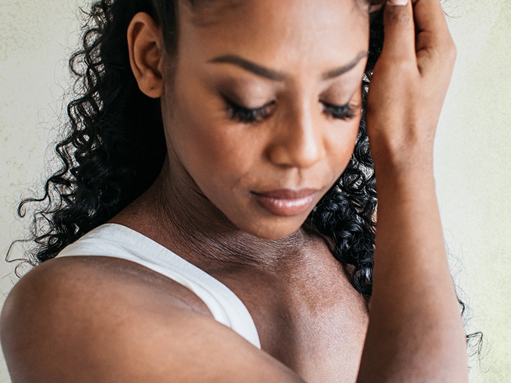 www.medicalnewstoday.com: Eczema skin discoloration: Treatment, types, and more
